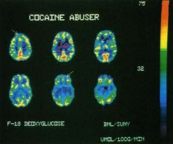 People who use cocaine often feel smart and powerful. Actually, a brain impaired by cocaine use is less active than a healthy brain. These positron emission tomography (PET) scans show areas of high brain activity in red and yellow. Note that brain activity is reduced in the cocaine user, especially in the frontal lobes (arrows) where ideas, thoughts, plans, and memories are created. Photo Researchers, Inc.