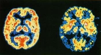These positron emission tomography (PET) scans show the dramatic difference in brain activity between a healthy person (lfit) and a person with Alzheimer disease (right). Brain activity, indicated by red and yellow, has been greatly reduced in the brain at right. Photo Researchers, Inc.