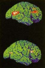 Positron emission tomography (PET) records electrical activity inside the brain. With red and yellow showing brain activity, the brain of a depressed person at the top shows a decrease in activity compared to the brain of a person who has been treated for depression at the bottom. Treatment can improve metabolic acticity and blood flow in the brain. Photo Researchers, Inc.