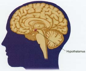 Eating disorders have multiple causes, which may include social and cultural pressures, emotional issues, and family stressors. Chemical imbalances in the brain, shown here in cross-section, may also cause eating disorders. These imbalances affect the hypothalamus, which is believed to control appetite.