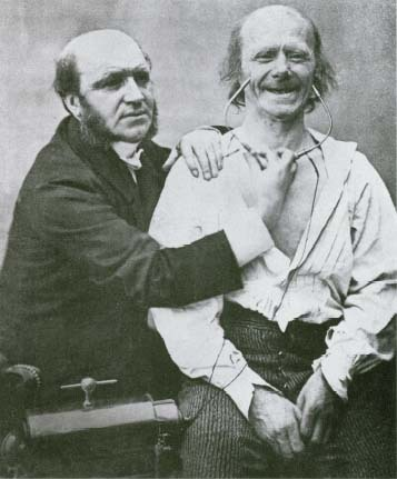 The French neurologist Guillaume Duchenne (1806-1875) studied the body's neuromuscular system. In this experiment (c. 1855), he used an electrical stimulation device to activate the involuntary facial muscles involved in smiling and laughter. Getty Source/Liaison
