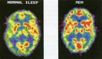 The red regions of these PET scans show the difference in brain activity during normal sleep (lft) and REM sleep (right). During REM sleep dreams occur, and the brain strengthens memories by processing experiences and new information. The PET scan of the REM brain actually looks similar to a PET scan of a brain that is fully awake. Photo Researchers, Inc.