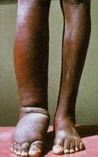 How Is Elephantiasis Treated