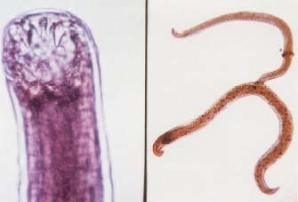 Two species of hookworm, Ancylostoma duodenale (left) and Necator americanus (right), can infect humans. Custom Medical Stock Photo, Inc.