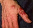 "Exposure to Mycobacterium marinum can lead to a rare infection known as swimming pool granuloma"" or ""aquarium granuloma."" About 3 weeks after the bacteria enters through a break in the skin, usually on the hands, reddish bumps appear. This infection can be prevented by avoiding contact with contaminated water and wearing gloves or washing thoroughly when cleaning aquariums. Custom Medical Stock Photo, Inc."