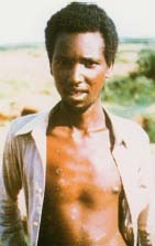 Ali Maow Maalin, of Somalia. He is the last person known to have contracted smallpox, in 1977. Science VU/CDC/Visuals Unlimited