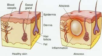 An external abscess is an accumulation of pus that results from