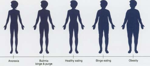 Society and Eating Disorders