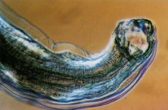 Hookworm - body, causes, What Is Hookworm?, How Do Hookworms