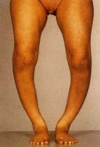 Rickets Body Causes What Is Vitamin D