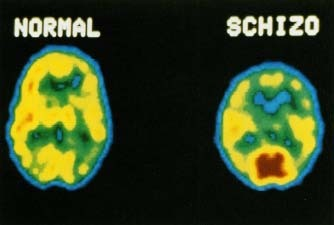 a look at the different groups of schizophrenia