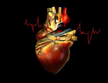 autopsy evidence of heart attack