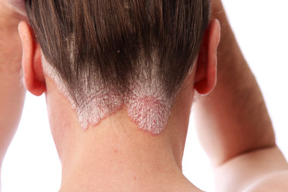 Seborrheic Dermatitis On Scalp
